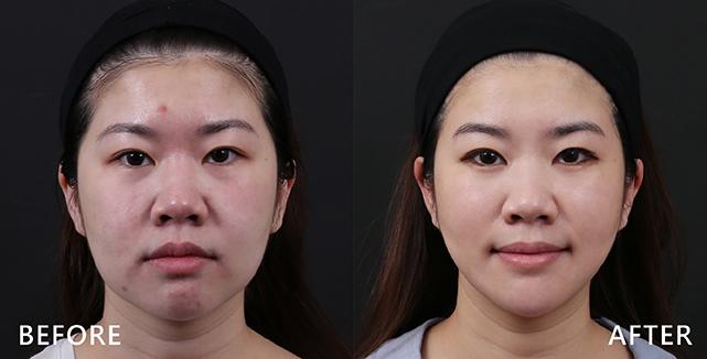 玻尿酸拉提中臉,雙頰更立體,兩邊也不再垂垮(效果因個案而異)