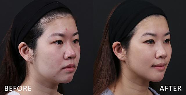 側臉照更可明顯看出輪廓線條變化(效果因個案而異)
