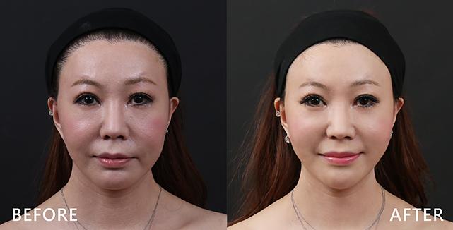 藝人婷婷兩邊臉型較不對稱,所以在進行玻尿酸注射時,最重要的想辦法盡量平衡(雖然無法完全糾正不對稱)。另外盧靜怡院長提到,婷婷臉型比較像小孩,輕微肉肉的,所以要想辦法藉由玻尿酸讓呈現臉V型並拉提(效果因個案而異)