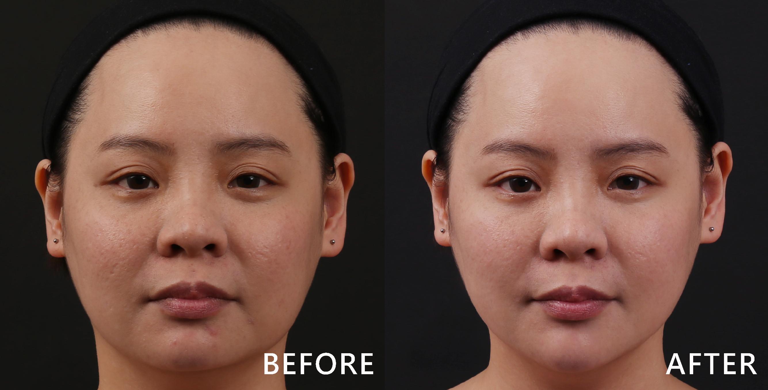自然修補蘋果肌後,臉型變好也變V了!(效果因個案而異)