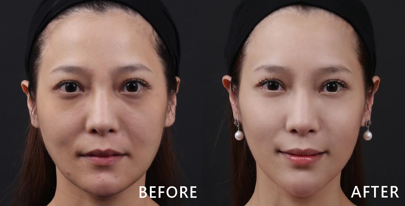 改善黑眼圈及臉部凹陷後馬上變貴婦臉。(效果因個案而異)
