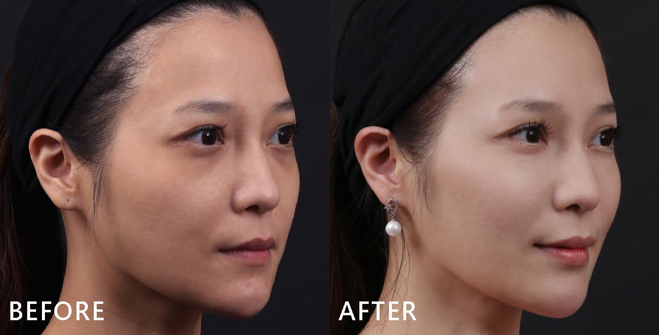玻尿酸填補後,臉型變V、下巴的曲線出來了。(效果因個案而異)