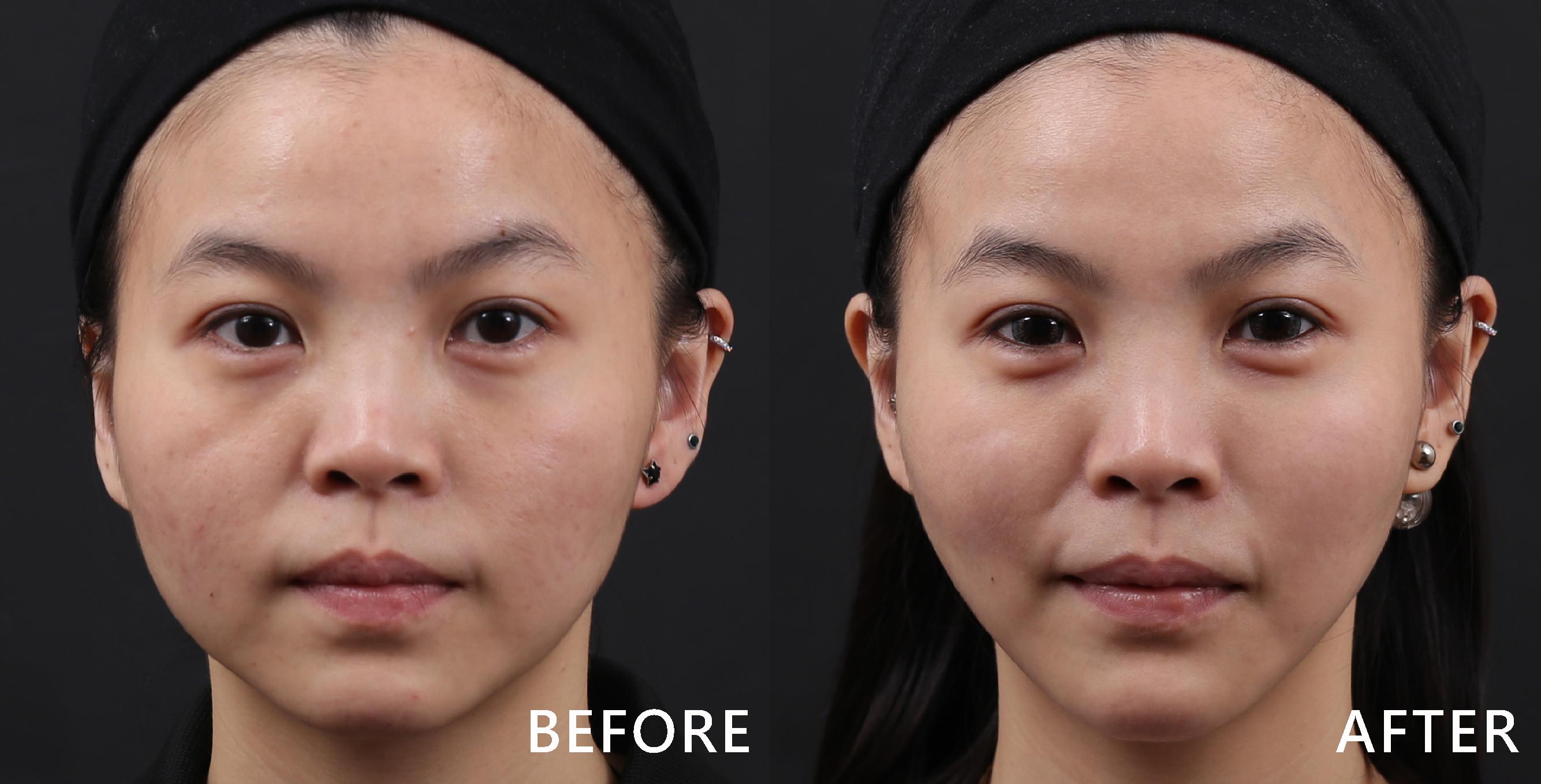 蘋果肌的線條變圓潤自然,臉型也變V、下巴的曲線出來了。(效果因個案而異)