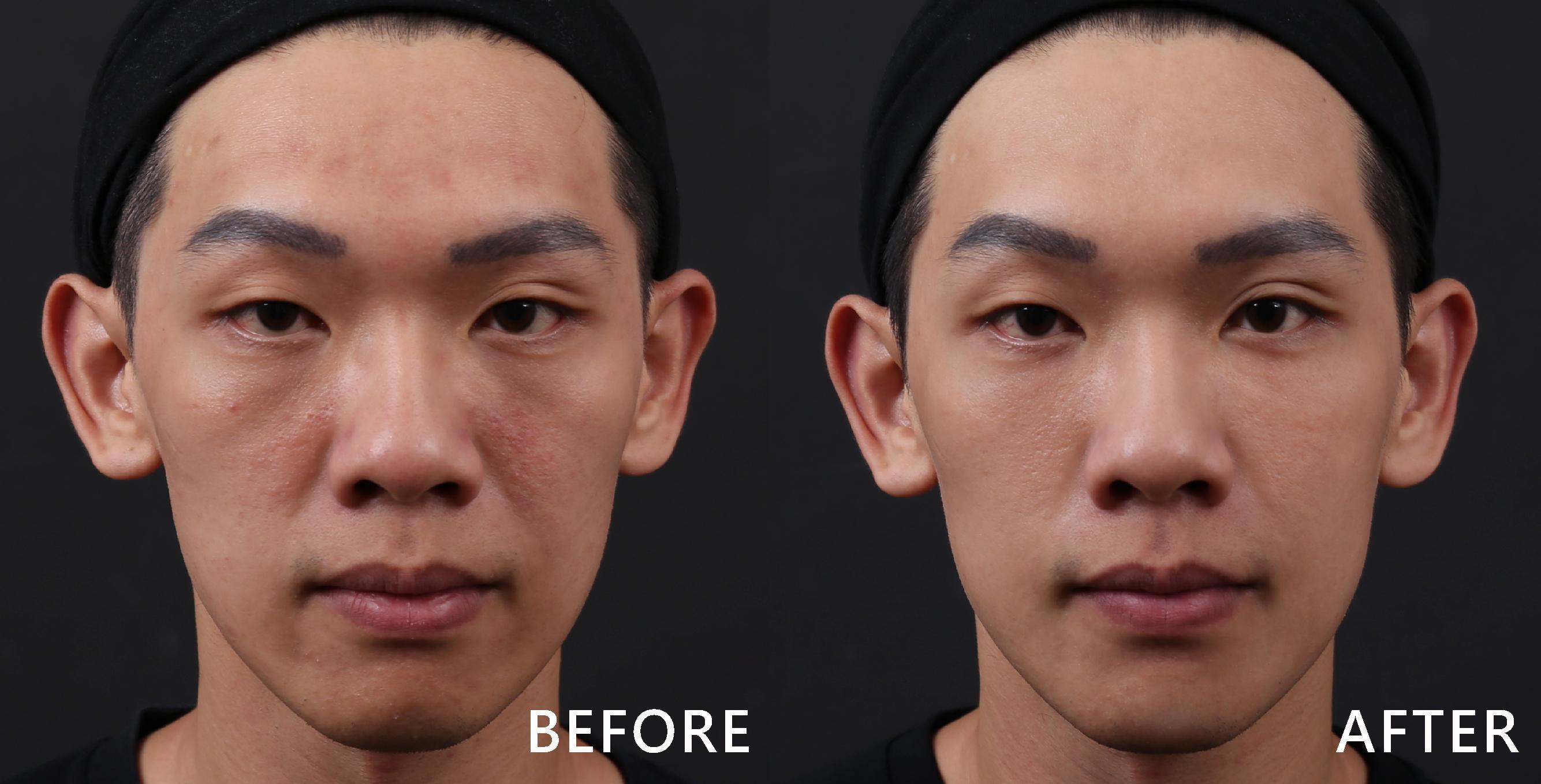 玻尿酸讓淚溝不見了,臉型與眼神更柔和。(效果因個案而異)