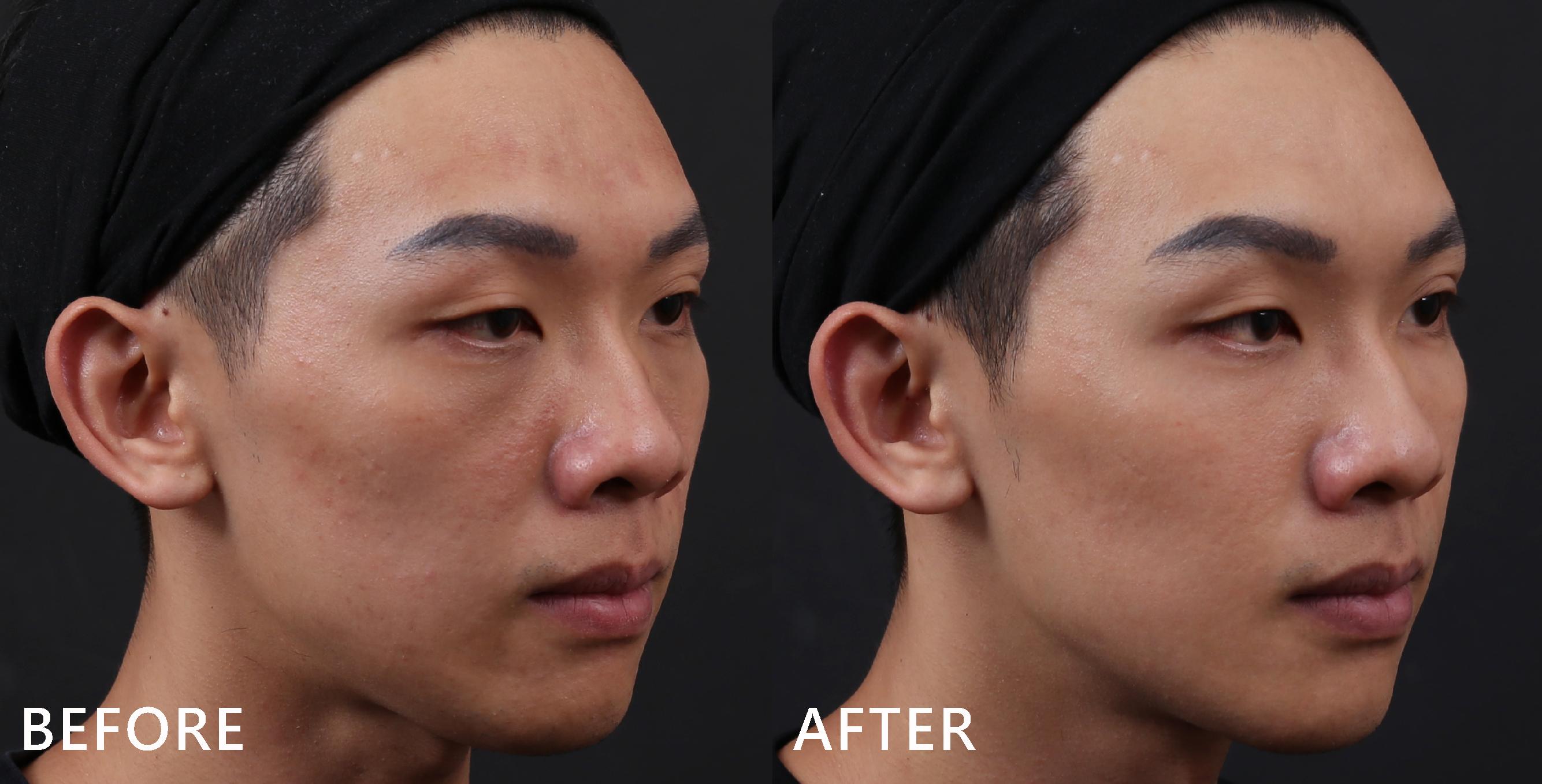 自然修補蘋果肌後,臉型凹陷消失了。(效果因個案而異)