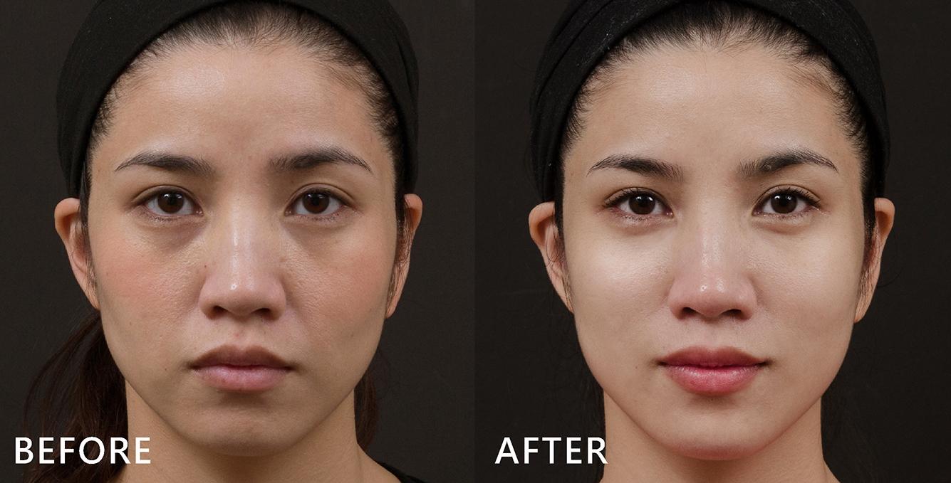 歐美系名模護理師以玻尿酸改善黑眼圈及臉部凹陷,看起來更有精神,臉部曲線柔和了!(效果因個案而異)