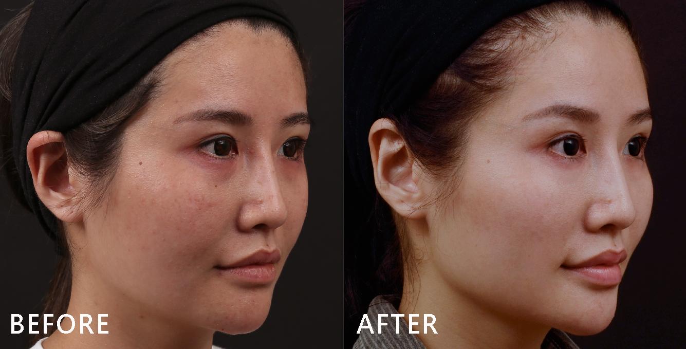 盧醫師是以以玻尿酸拉提Susan中頰,自然修補蘋果肌後,法令紋自然就消失,臉型自然就UPUP飽滿了!(效果因個案而異)