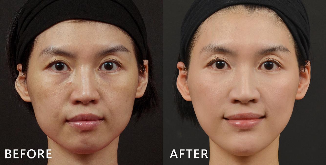 空姐Tiffany天生眼型比較圓,有眼尾下垂的問題,以玻尿酸針對眼周拉提,同時也讓臉型更順、角度更柔和了!(效果因個案而異)