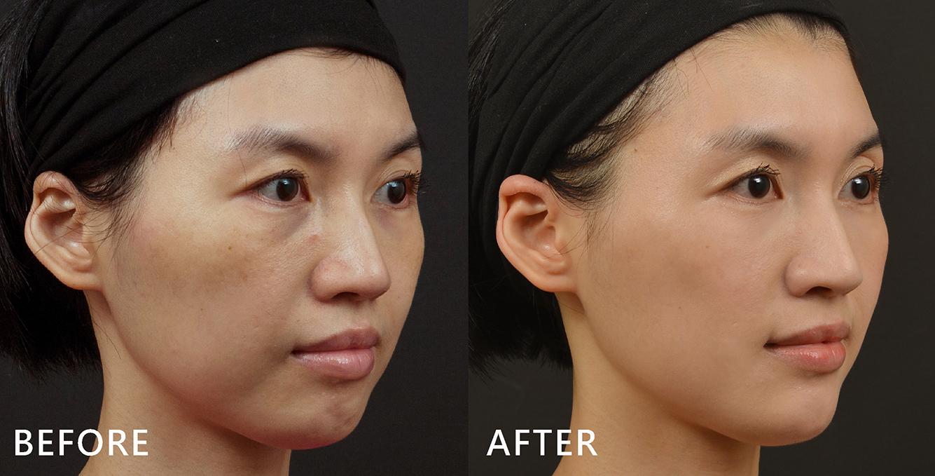空姐Tiffany只拉提了中臉跟下巴,就讓臉型與五官看起來更立體更集中,還不小心讓大家誤以為她有打鼻子。(效果因個案而異)