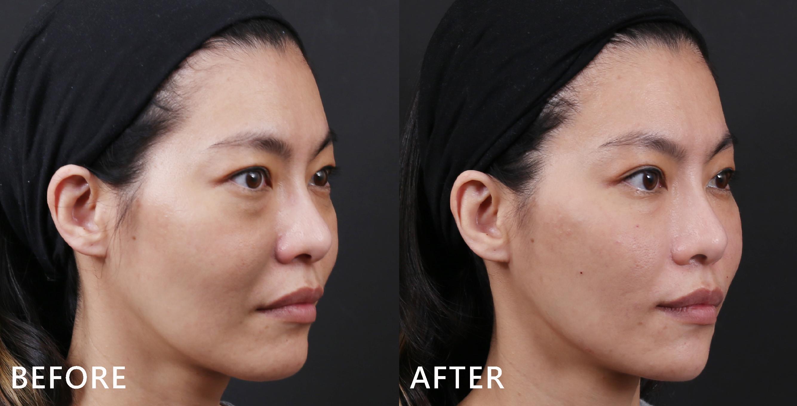 術後臉型的弧度也修飾得更順,下巴線條也變得更美(效果因個案而異)