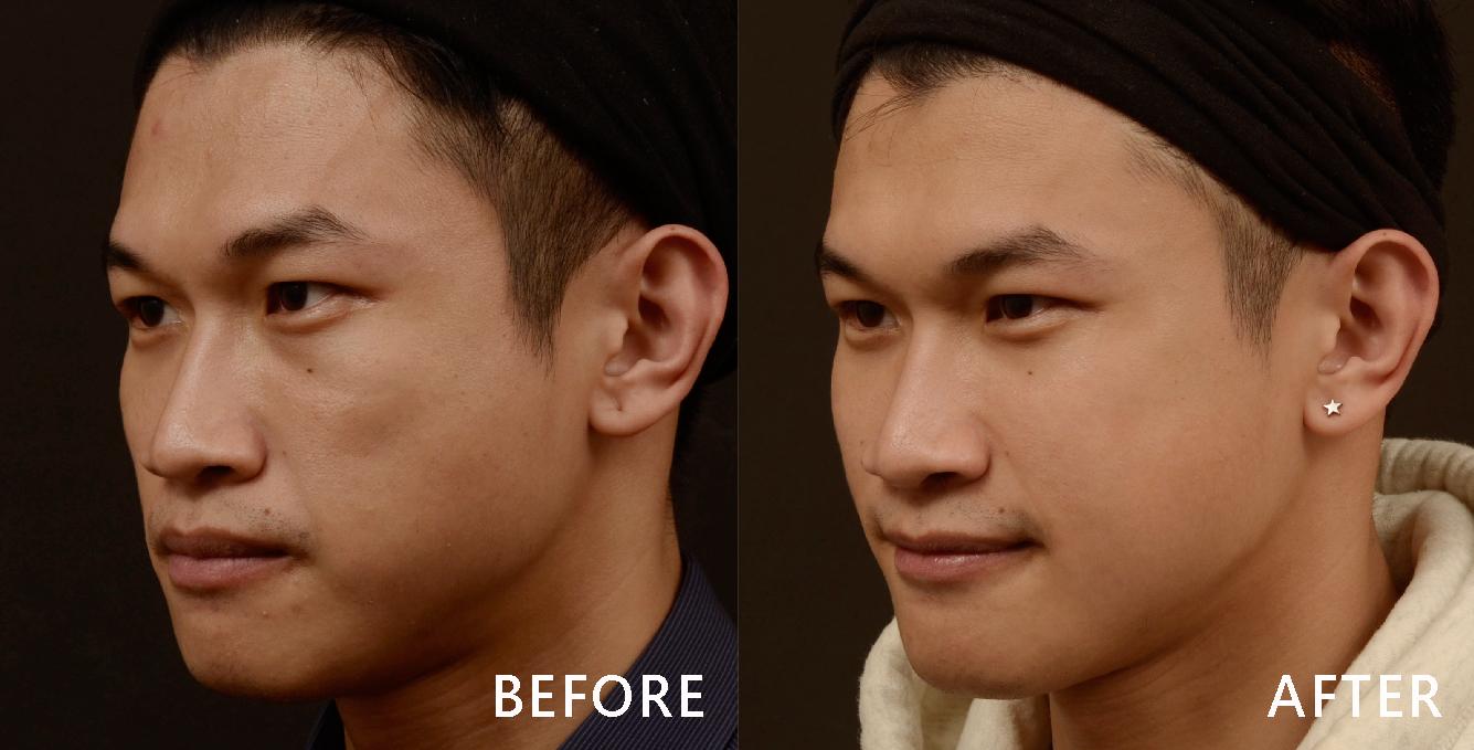 盧醫師同時以玻尿酸填補下巴,把下巴線條拉出來,同時順修耳下兩頰的線條,臉型變對稱與好看了!(效果因個案而異)