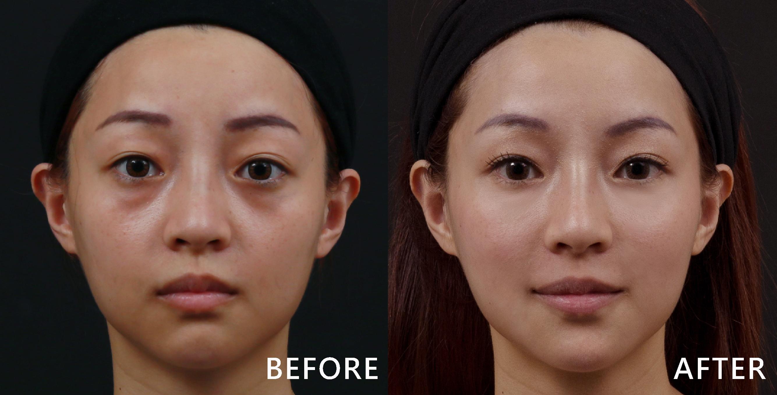 玻尿酸能有效填補淚溝,立馬變電眼 。(效果因個案而異)