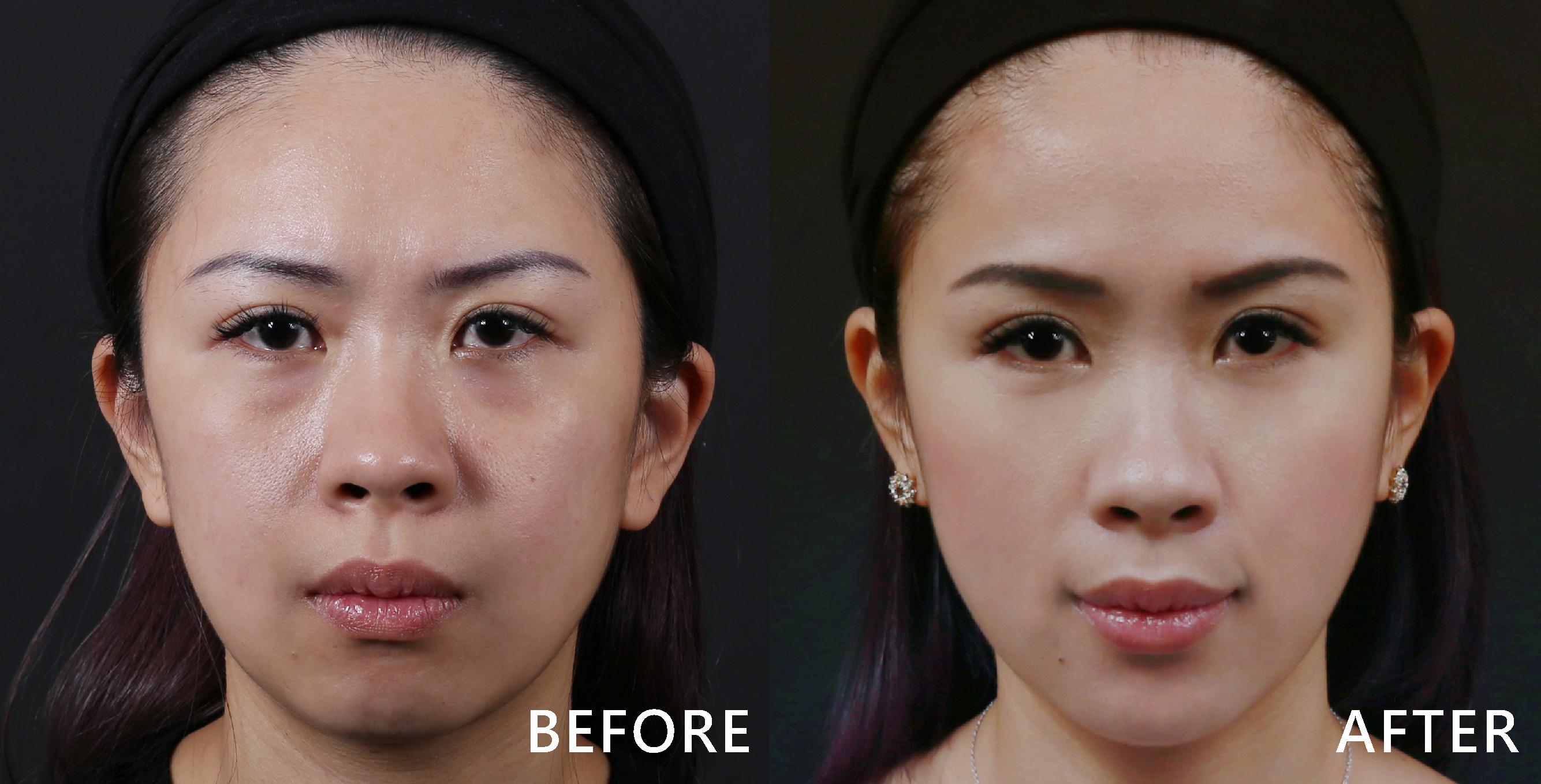 玻尿酸讓護理師的凹陷的臉頰變得豐潤、明顯的淚溝也不見了!(效果因個案而異)
