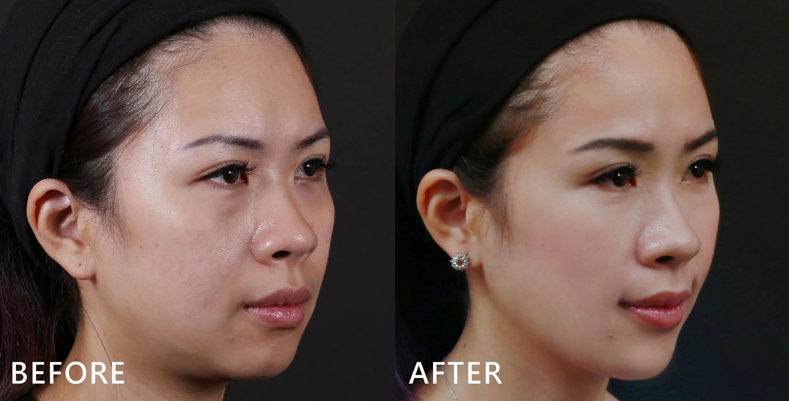 臉型的弧度也修飾得更順,下巴線條也變得更美,蘋果肌也出現了!(效果因個案而異)