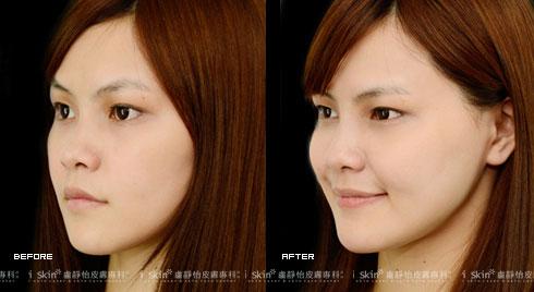(右)下巴和蘋果肌治療後臉部曲線出現     實際施打效果因個案而異