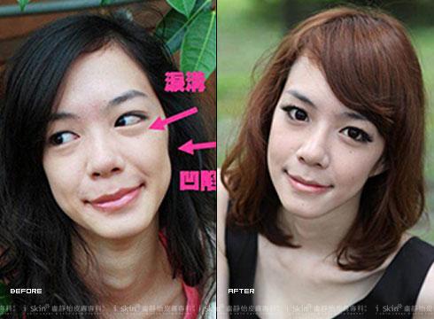 (左)淚溝和臉頰凹陷問題明顯,略顯蒼老(右)施打山根,五官就變得立體     實際施打效果因個案而異