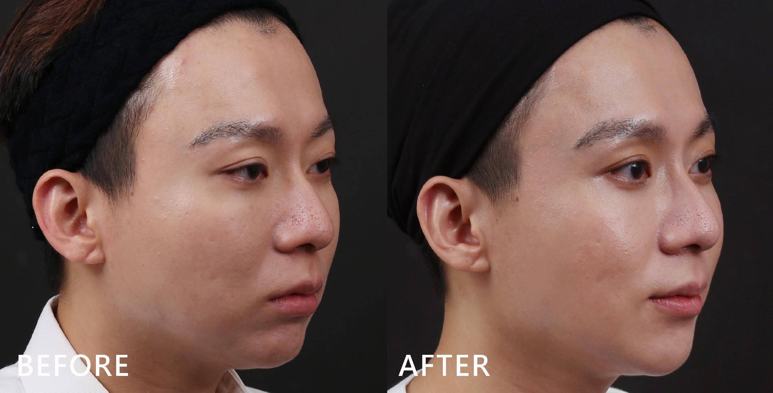 臉部輪廓真的比以前立體了。(效果因個案而異)