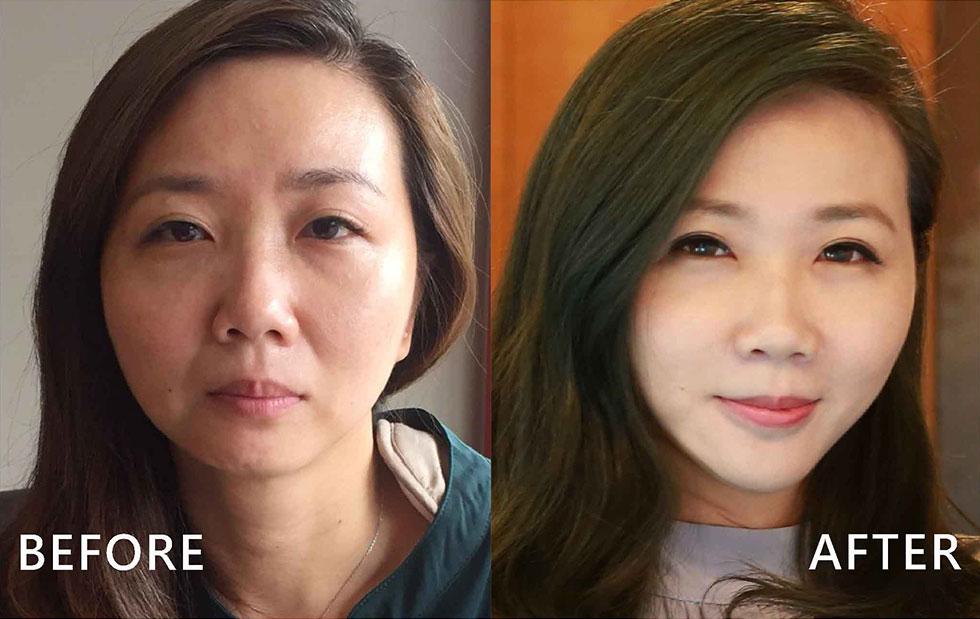 玻尿酸淚溝 /下巴 / 嘴唇 / 拉提中頰、自然修補法令紋 (實際效果因人而異)