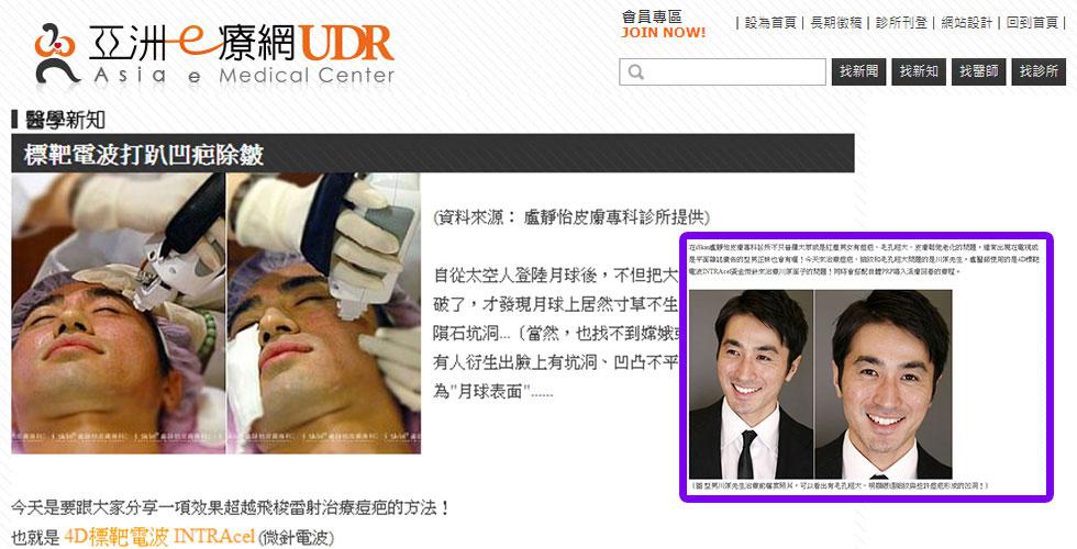 亞洲醫療網上介紹標靶電波除痘疤