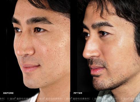 (右)膚質看起來變得細緻有光澤(實際效果因個案而異)