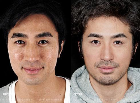 (右)臉上痘疤、毛細孔都不再明顯(實際效果因個案而異)