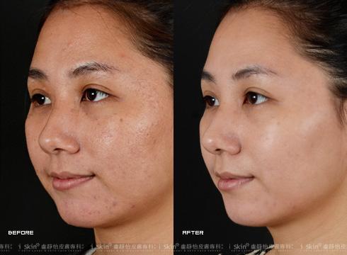 (右)因為肌膚更新而白晰有光澤(實際效果因個案而異)
