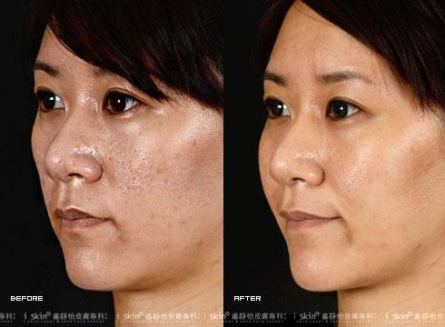 (右)側面看痘疤也明顯淡化許多(實際效果因個案而異)