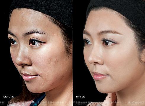 (右)除掉痘疤後平滑細緻的臉蛋(實際效果因個案而異)
