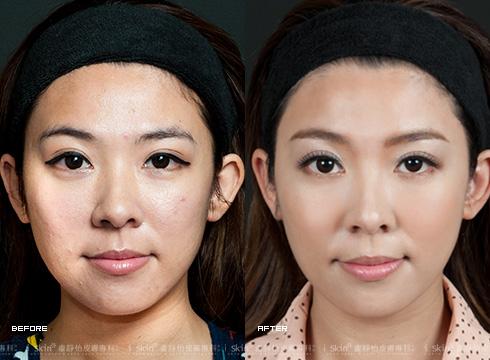 (右)治療後還原該有的漂亮臉蛋(實際效果因個案而異)