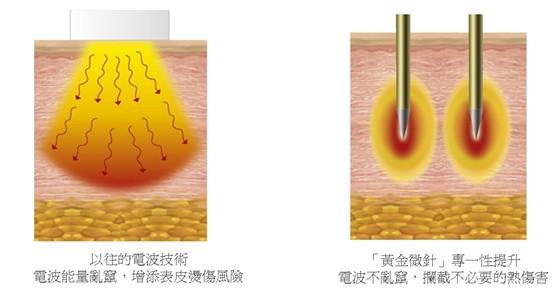 (左)以往的電波技術能量容易亂竄,增加表皮燙傷風險;(右)標靶探頭的黃金絕緣針深入皮下,同時在針尖釋放電波,可以準確到達治療區域,攔截表皮的熱傷害。