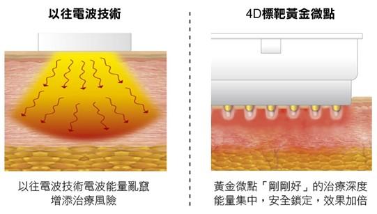 (左)以往的電波技術能量容易亂竄,增加表皮燙傷風險;(右)基底探頭的黃金微點鎖定「剛剛好」的治療深度,更加舒適和安全。