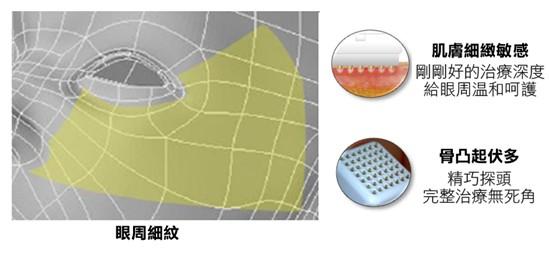 基底探頭也能對細緻敏感、骨凸起伏多的眼周肌膚進行治療。