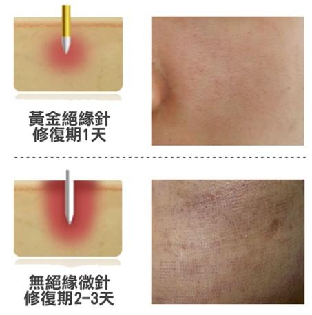 黃金微針上端具絕緣專利設計,於深層釋放電波,可保護表皮不受熱傷害,並在一天內快速修復退紅。