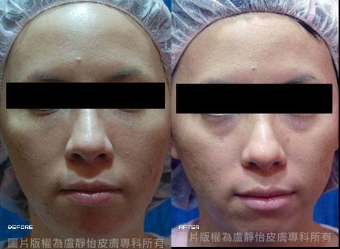 (右)肌膚重拾明亮白皙光彩(實際效果因個案而異)