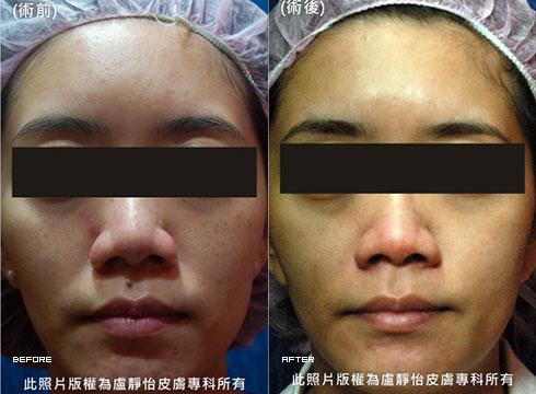 (右)還原白淨無瑕的乾淨肌膚(實際效果因個案而異)