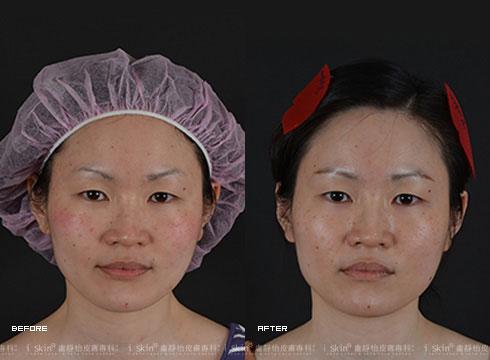 (右)治療後揮別滿臉痘印(實際效果因個案而異)