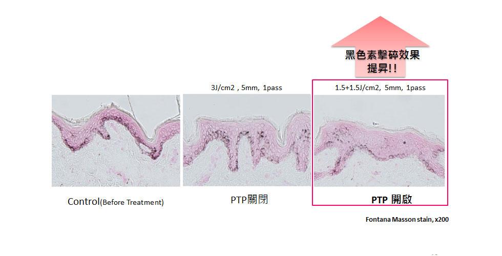 新一代淨膚雷射-日式美姬PTP強力淨化系統提高黑色素擊碎效果。
