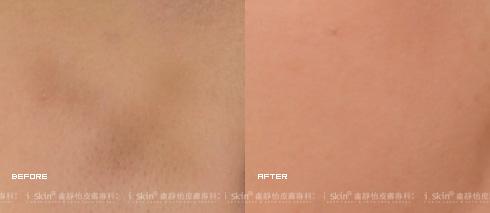 膚色不均成功淡化(實際效果因個案而異)