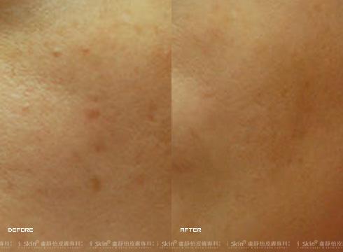 色素沉澱的痘印變淺,毛孔也變小(實際效果因個案而異)