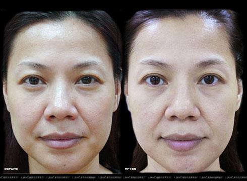 (右)解決膚色不均的問題(實際效果因個案而異)