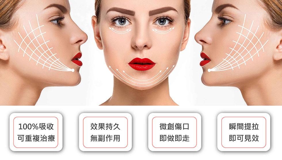 美人線/提美拉線性拉提手術後能拉提收緊局部,有效改善臉部型態與輪廓。