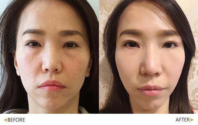 美人線/提美拉線性拉提後,改善臉頰至下巴線條。