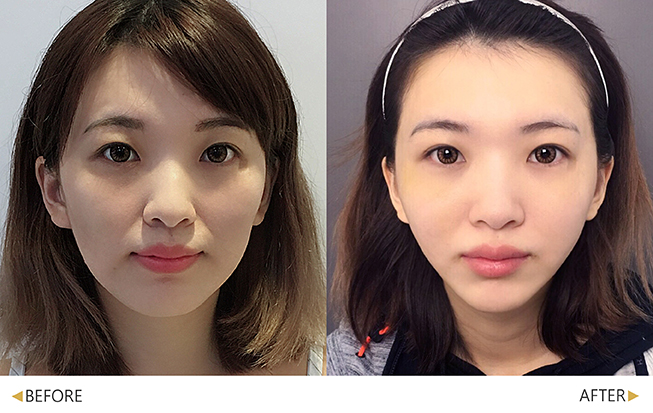 美人線/提美拉線性拉提後,改善肉肉的臉頰。(實際效果因個案而異)