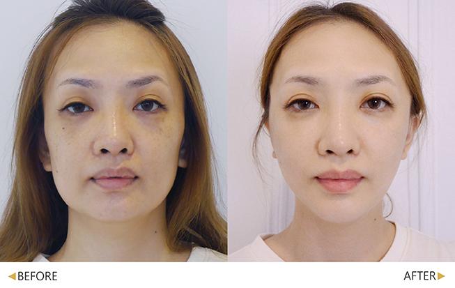 美人線/提美拉線性拉提後,改善國字臉。(實際效果因個案而異)
