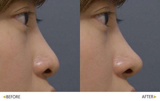 美人線/提美拉線性拉提後,改善山根至鼻尖弧度。(實際效果因個案而異)