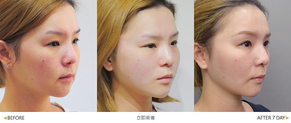 美人線/提美拉線性拉提手術後,正面與側面都能明顯有拉提效果。(實際效果因個案而異)