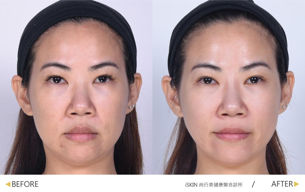越來越明顯的法令紋與鬆垮臉部曲線,顯老也會讓人感覺沒精神、滿臉倦容。(實際效果因個案而異)