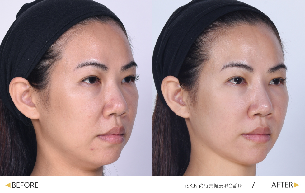 利用美人線/提拉美線性拉提,正面與側面都能看到明顯拉提效果,重拾緊緻感與V臉少女線條。(實際效果因個案而異)