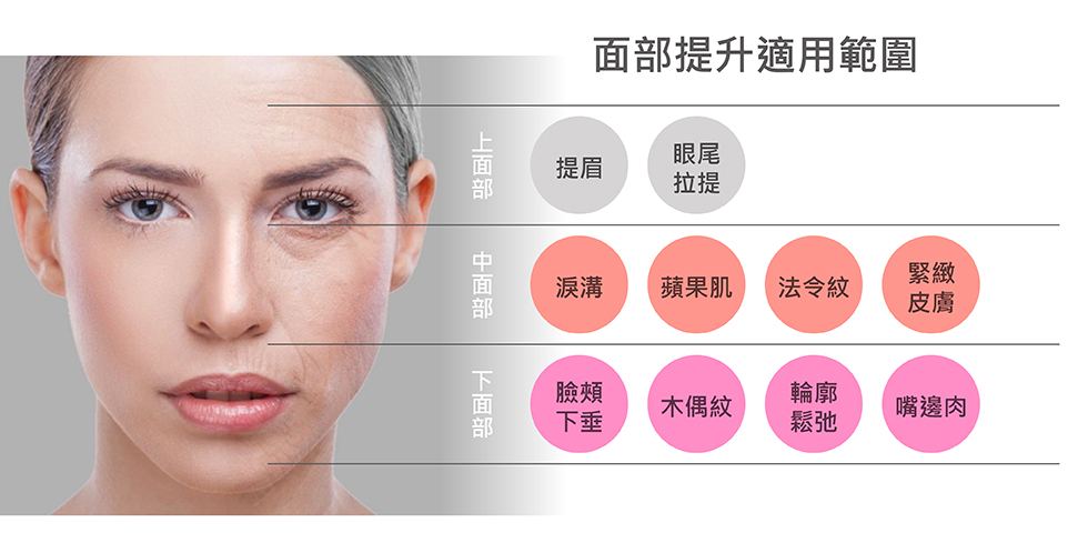 美人線/提美拉線材可分別作用於臉部多個部位,達到不同的拉提效果。