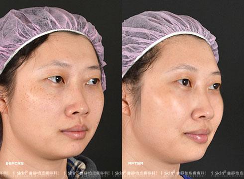(右)治療後斑點消失(實際效果因個案而異)